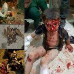 Gaziantep'teki İnsanlık Dışı Terörist Katliamı Lanetliyoruz!